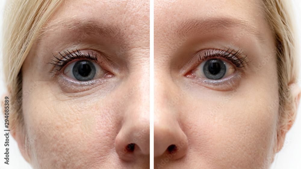Fototapeta Woman face with wrinkles and age change before and after treatment - the result of rejuvenating cosmetological procedures of biorevitalization, botox face lifting and pigment spots removal