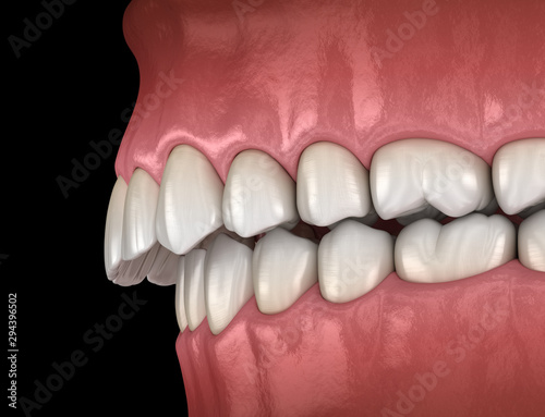 Fotografie, Tablou  Overbite dental occlusion ( Malocclusion of teeth )