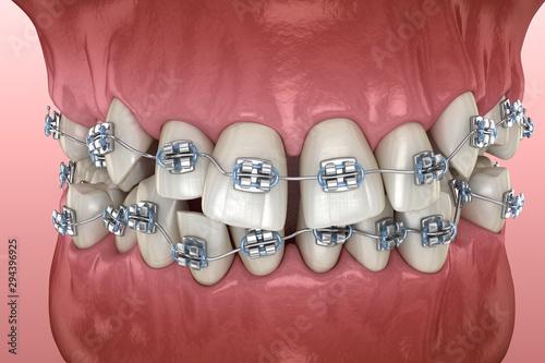 Photo Abnormal teeth position and metal braces tretament