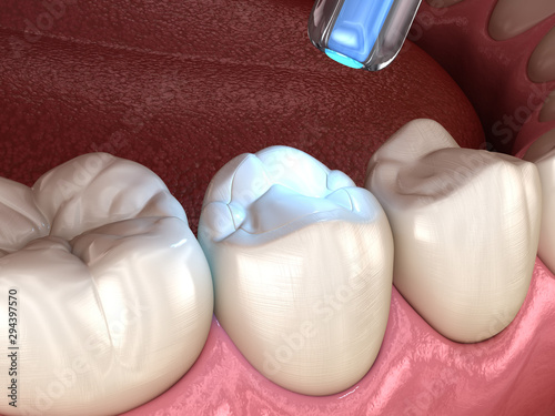 Fotografija Tooth restoration with filling and polymerization lamp