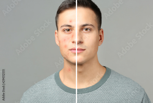 Portrait of young man with acne problem on grey background Canvas Print