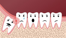 Wisdom Teeth Dental Problems Funny Concept