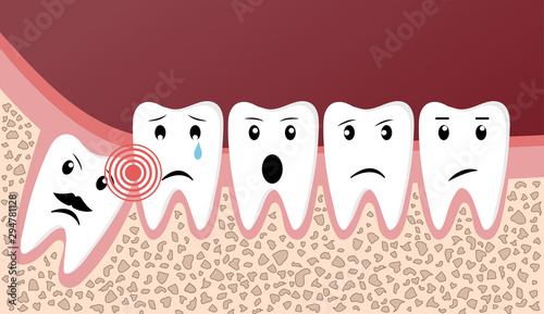 Wisdom teeth dental problems funny concept Canvas-taulu