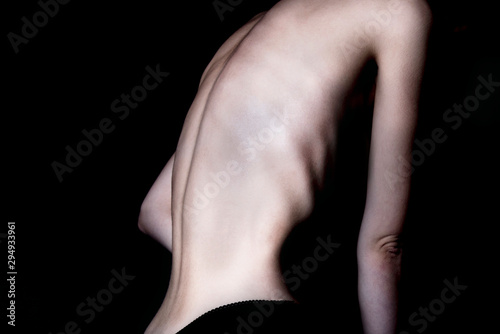 Photo A girl with anorexia turned back, spine and ribs visible