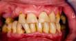 canvas print picture - akute parodontitis mit tiefen zahnfleischläsionen