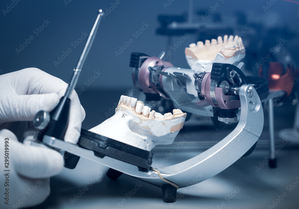 Fototapeta orthodontic prosthesis. laboratory. close-up. dental