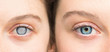 Person with white pupil and healthy eye comparison close up