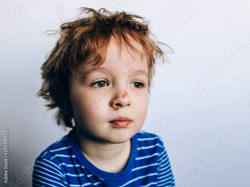 Photo portrait of a small sad boy with abrasion, scratches on his cheek and nose