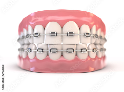 Photo Fake Teeth Set With Braces