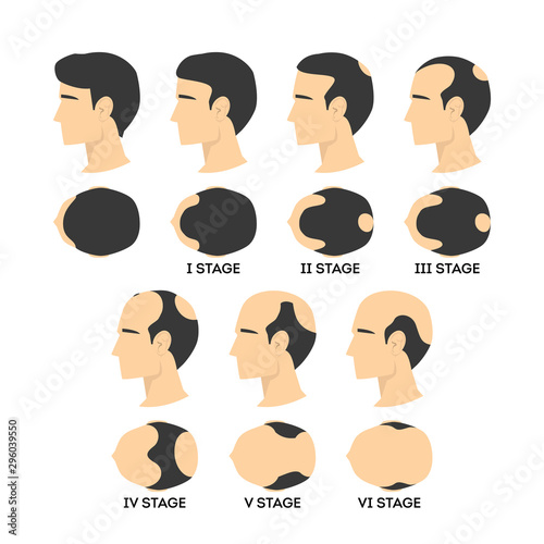 Alopecia stages set. Hair loss, balding process. Male Canvas Print