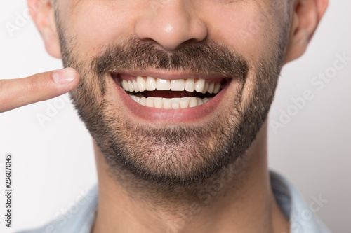 Pinturas sobre lienzo  Close up of smiling man showing white healthy teeth