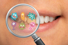 Magnification With A Lens Of A Set Of Teeth With Yellow Teeth And Bacteria Responsible For Caries, Plaque And Tartar