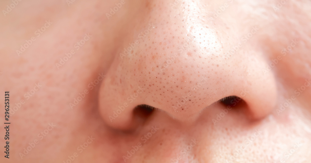 Fototapety, obrazy: blackheads on woman nose