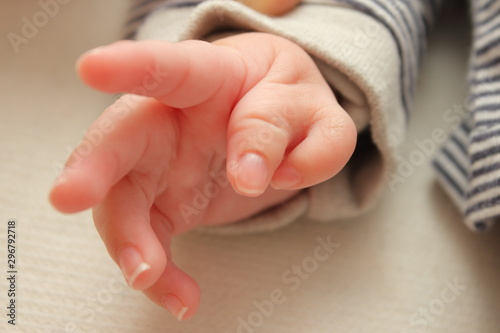 Polydactyly  Preaxial, Polydactyly on human; rare abnormal characteristic cause Canvas Print