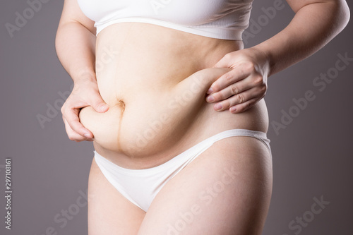 Fototapeta  Pregnancy line - linea nigra, tummy tuck, overweight female body and flabby bell