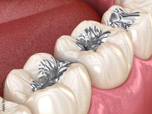 Photo Amalgam restoration