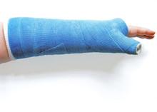Broken Wrist In Cast, Isolated...