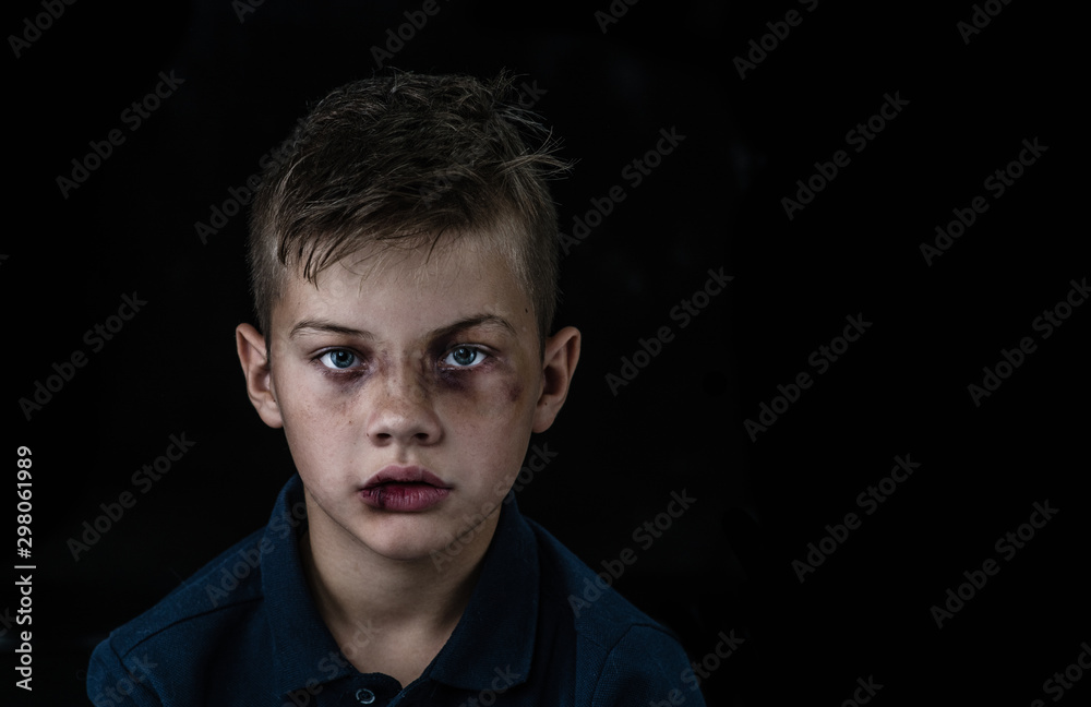 Fototapety, obrazy: Portrait of the boy victim of domestic violence and abuse. Isolated on dark background. Empty space for text