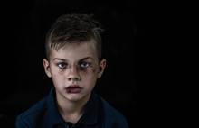 Portrait Of The Boy Victim Of Domestic Violence And Abuse. Isolated On Dark Background. Empty Space For Text