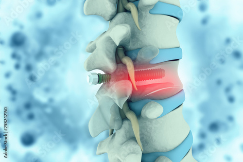 Cuadros en Lienzo spinal column with implant. screw placement. 3d illustration