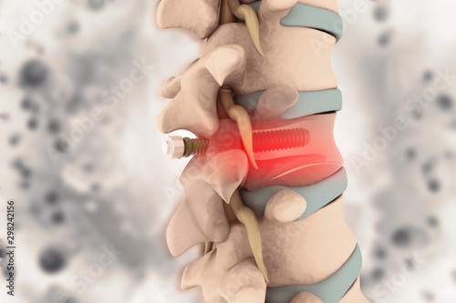 Cuadros en Lienzo  spinal column with implant, screw placement, 3d illustration
