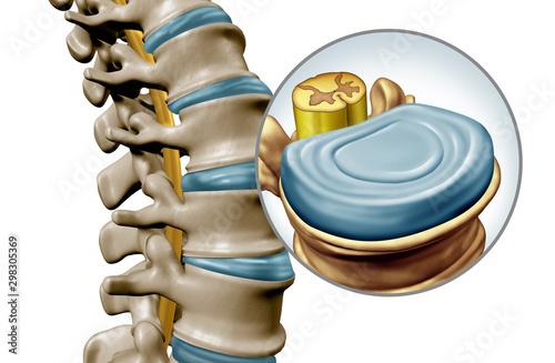 Cuadros en Lienzo Human Spine Disk Anatomy