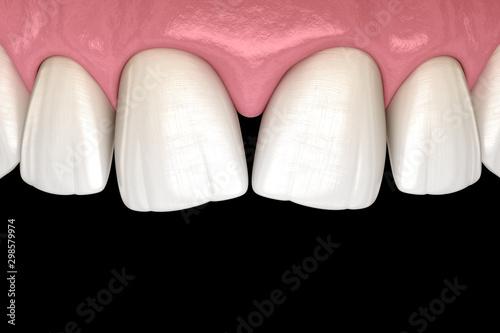 Valokuva  Convergent diastema of central incisors teeth