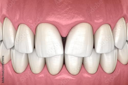 Fotografia, Obraz Convergent diastema of central incisors teeth