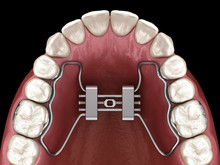 Rapid Palatal Expansion. Medically Accurate Tooth 3D Illustration