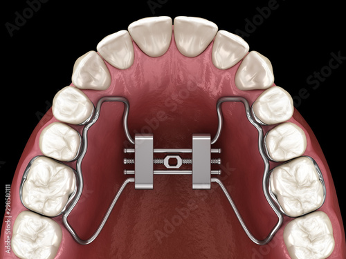 Rapid Palatal Expansion. Medically accurate tooth 3D illustration Canvas Print