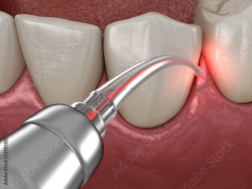 Foto Gum correction surgery with laser