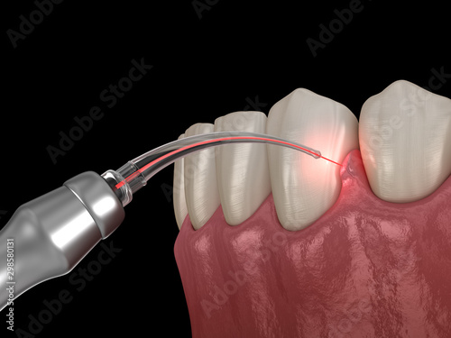 Gum correction surgery with laser.  Medically accurate tooth 3D illustration - 298580131
