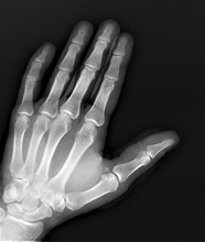 Normal X-ray Of The Hand Bones And Fingers,orthopedics, Medical Diagnostics, Rheumatology