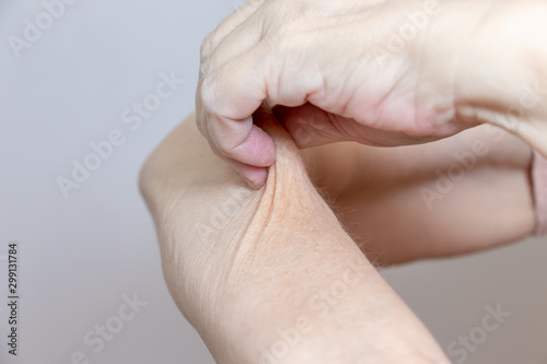 Fotografia, Obraz A senior elderly woman holding, pulling the skin on her arm with bad turgor, exc