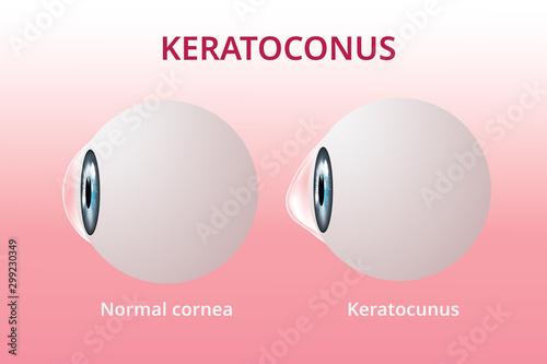 Vászonkép  Eye cornea and keratoconus, eye disorder, medical vector