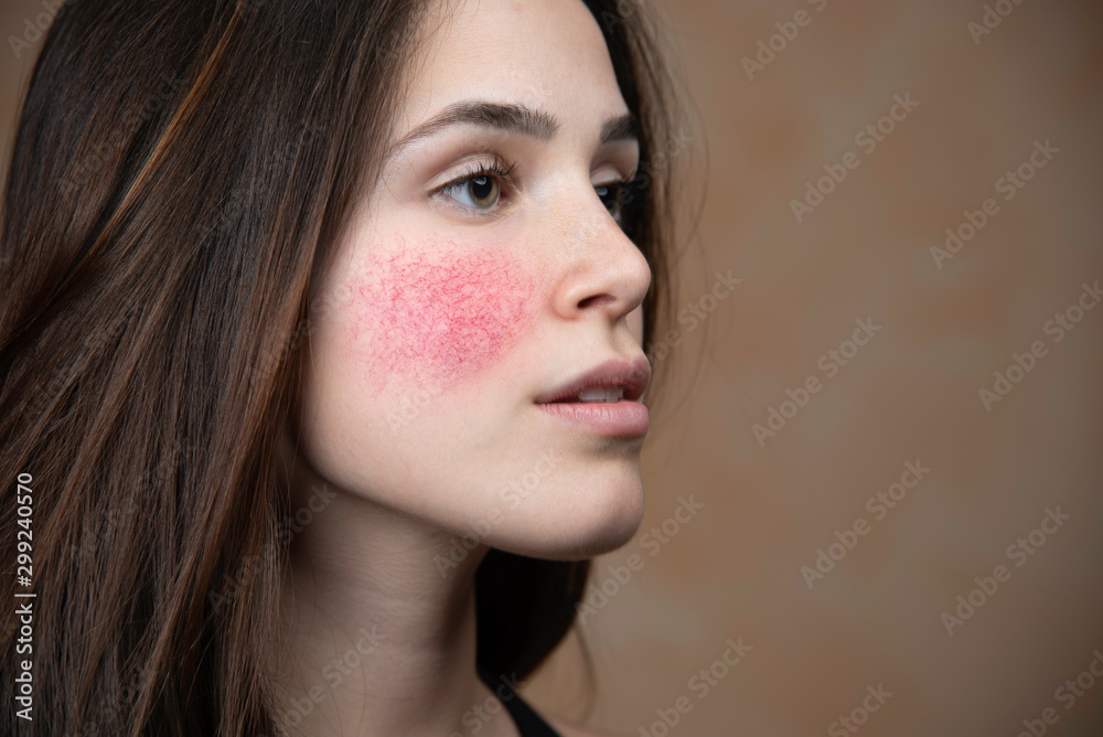 Fototapeta Beautiful young woman with rosacea