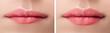 Leinwandbild Motiv Before and after lips filler injections. Beauty plastic augmentation procedure