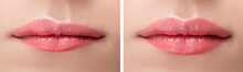 Before And After Lips Filler I...