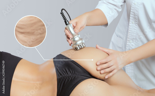 Fotografie, Obraz The doctor does the Rf lifting procedure on the legs, buttocks and hips of a woman in a beauty parlor