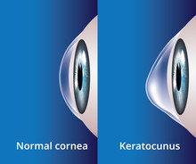 Eye Cornea And Keratoconus, Ey...