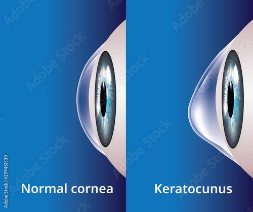 Eye cornea and keratoconus, eye disorder, medical vector Tapéta, Fotótapéta