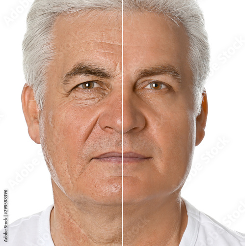 Fotografía  Mature man before and after plastic surgery on white background