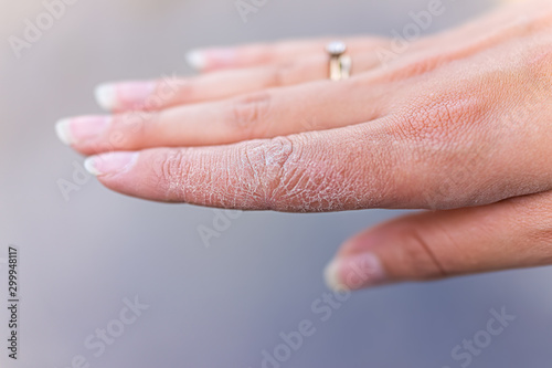Fototapeta Dry cracked skin macro closeup of index finger of female young woman's hand show