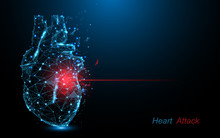 Human Heart Attack. Heart Disease Form Lines, Triangles And Particle Style Design