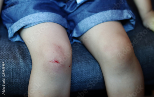Bloody abrasion on the child's knee Wallpaper Mural