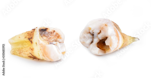Valokuvatapetti caries  isolated on white background