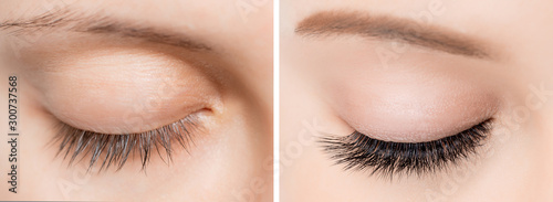 Cuadros en Lienzo  Eyelash extensionl procedure before and after