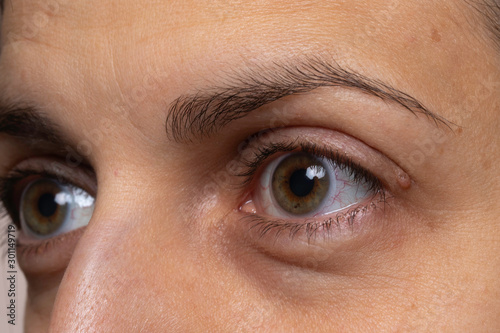 Woman with eye capillaries and baggy skin close up side view Canvas Print