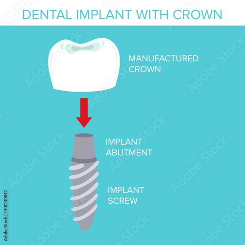 Illustration of a dental implant with crown Canvas Print