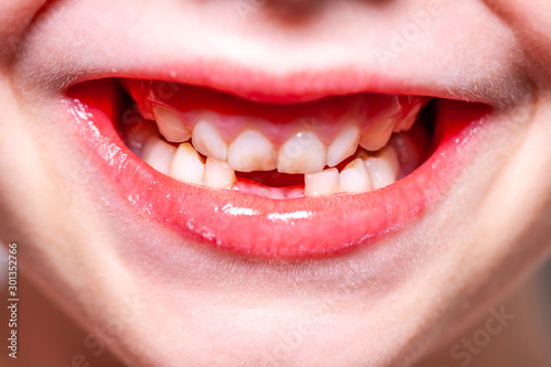 Closeup of little girl with missing teeth Canvas Print